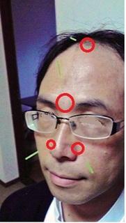 鼻炎の鍼.jpg